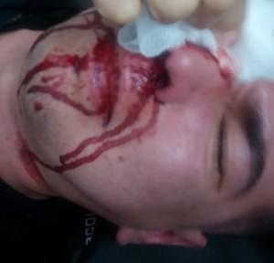 La víctima fue atacada por desconocidos